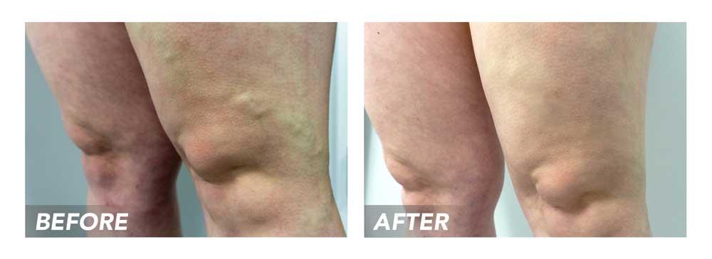 Before-After-VaricoseVeins-Patient4B