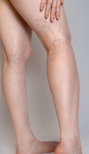 Spider Vein Dr in TX Discusses the Symptoms of Vein Disease