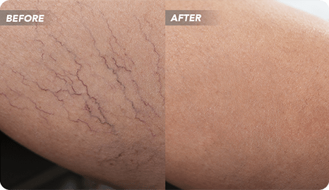Introducing Vein Treatment Clinic, a State-of-the-Art Spider Vein Clinic Near Me in River Oaks