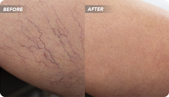 Spider Vein Treatment in Texas: Importance, Diagnosis, and Vein Removal — According to Vein Doctor
