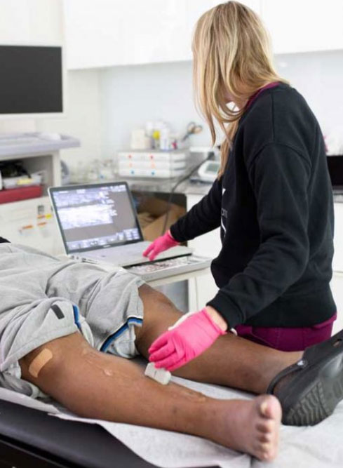 How Can I Find a Good Vein Center for Sclerotherapy In or Near TX?