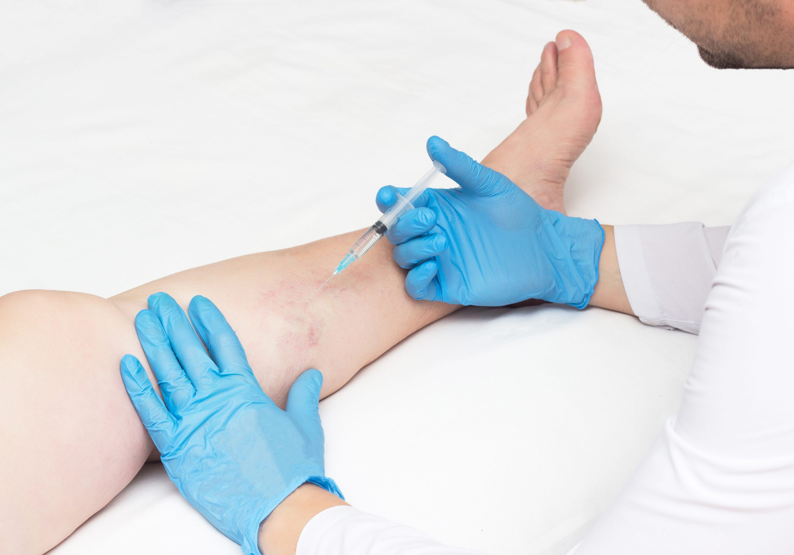 Dr. Calvin Jung is an exceptionally skilled and talented varicose vein doctor near River Oaks. This article describes his varicose vein treatment process and shows you how to request an appointment.