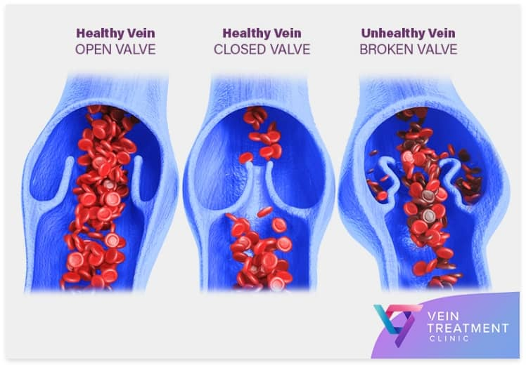Sclerotherapy-Vein-Treatment-California