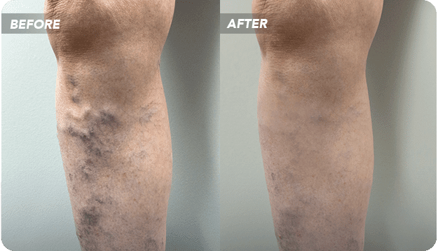 Consult Dr. Jung for Sclerotherapy In or Near Texas